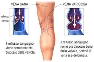 vene delle gambe