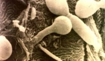 candida albicans al microscopio