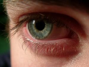Occhio rosso, che fare