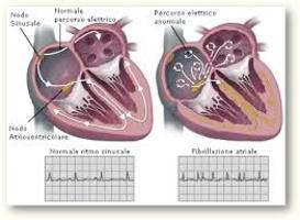 La fibrillazione atriale