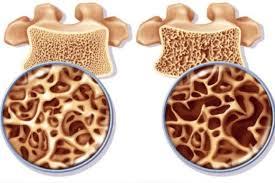 L' osteoporosi