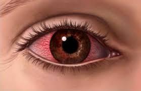 L'occhio secco