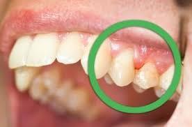 La parodontite: per alcuni ma non per tutti