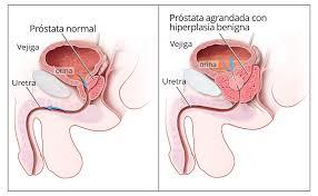 Prostata: prevenire è meglio che curare